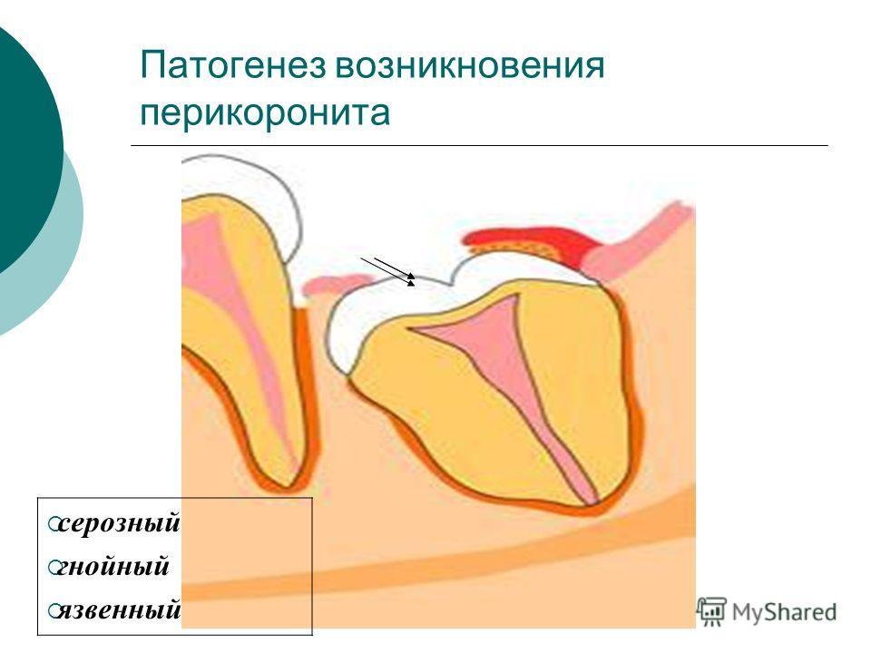 Патогенез возникновения перикоронита серозный гнойный язвенный