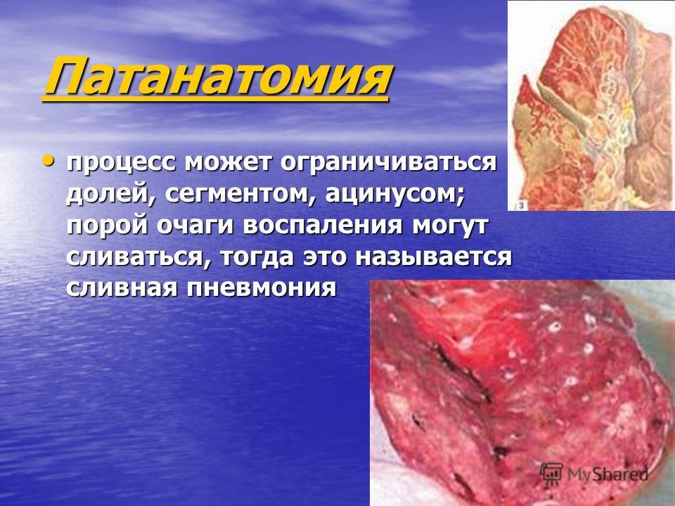 Патанатомия процесс может ограничиваться долей, сегментом, ацинусом; порой очаги воспаления могут сливаться, тогда это называется сливная пневмония процесс может ограничиваться долей, сегментом, ацинусом; порой очаги воспаления могут сливаться, тогда