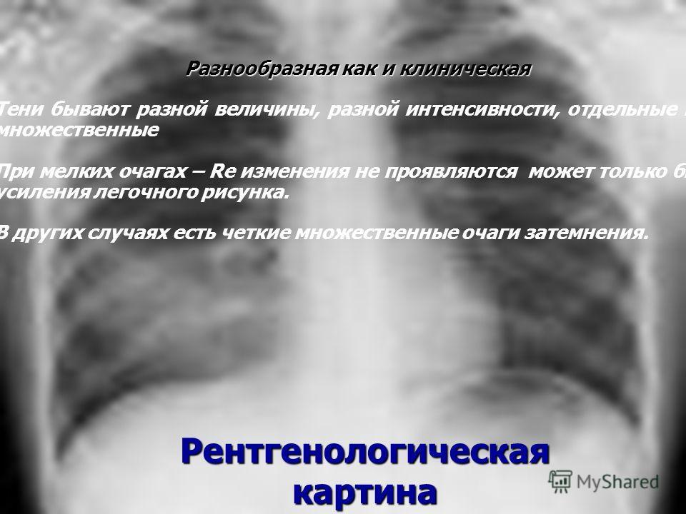 Рентгенологическая картина Разнообразная как и клиническая Тени бывают разной величины, разной интенсивности, отдельные или множественные При мелких очагах – Rе изменения не проявляются может только быть усиления легочного рисунка. В других случаях е