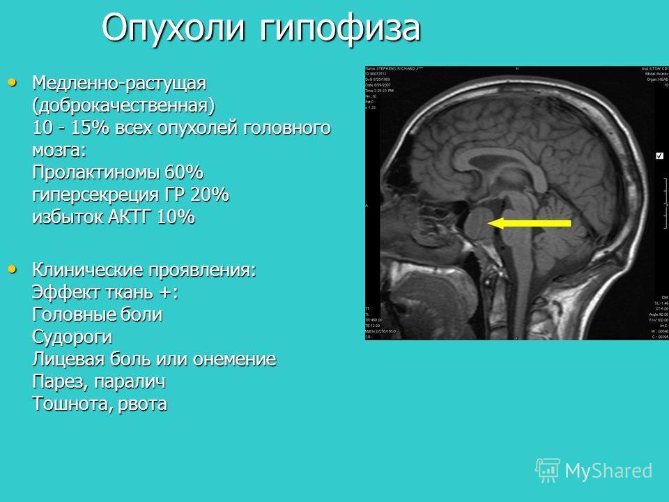 Опухоли гипофиза Медленно-растущая (доброкачественная) 10 - 15% всех опухолей головного мозга: Пролактиномы 60% гиперсекреция ГР 20% избыток АКТГ 10% Медленно-растущая (доброкачественная) 10 - 15% всех опухолей головного мозга: Пролактиномы 60% гипер