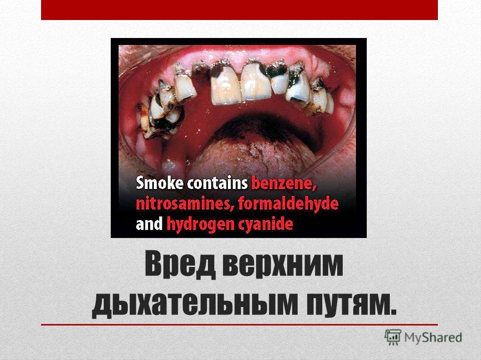 Вред верхним дыхательным путям.