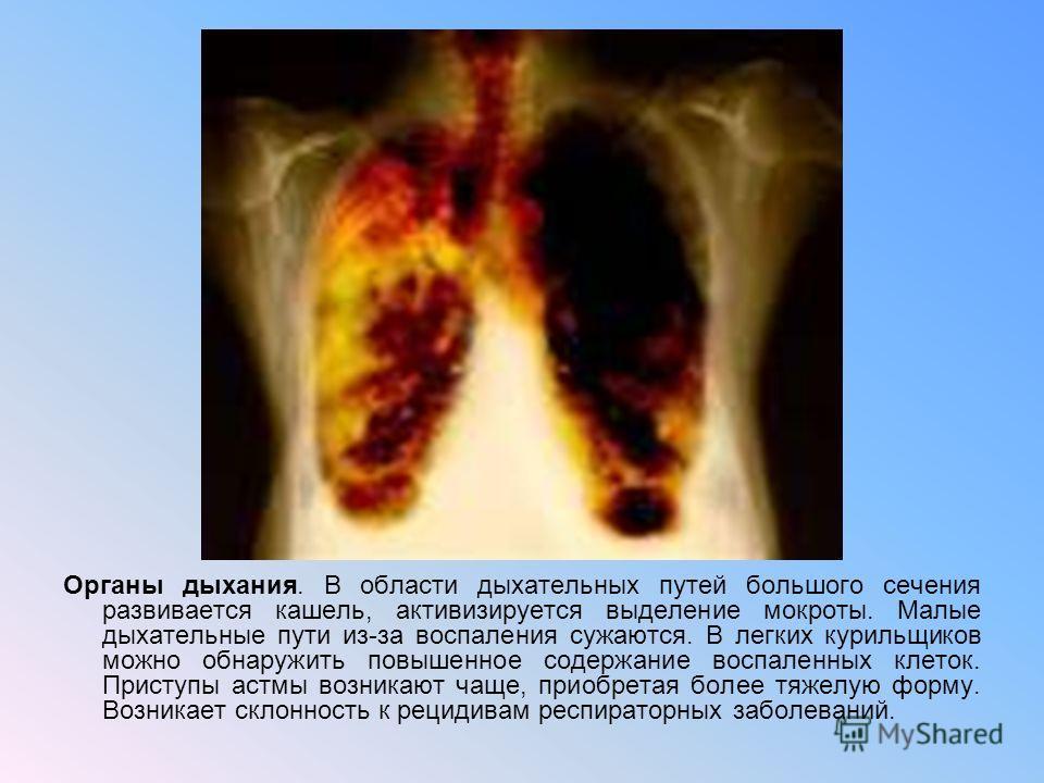 Органы дыхания. В области дыхательных путей большого сечения развивается кашель, активизируется выделение мокроты. Малые дыхательные пути из-за воспаления сужаются. В легких курильщиков можно обнаружить повышенное содержание воспаленных клеток. Прист