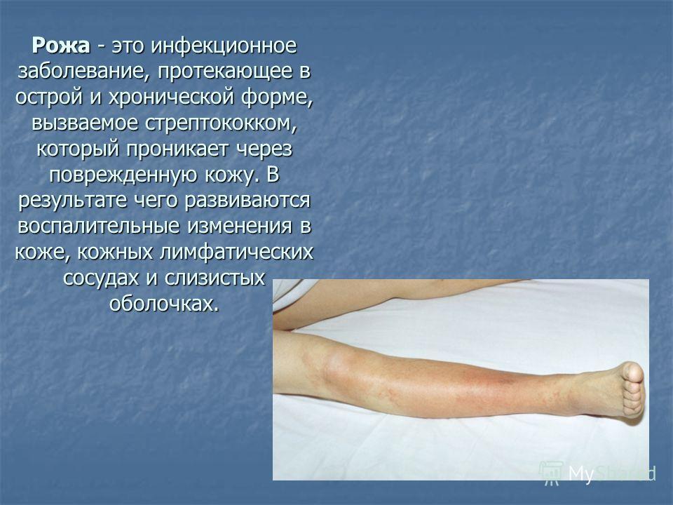Рожа - это инфекционное заболевание, протекающее в острой и хронической форме, вызваемое стрептококком, который проникает через поврежденную кожу. В результате чего развиваются воспалительные изменения в коже, кожных лимфатических сосудах и слизистых