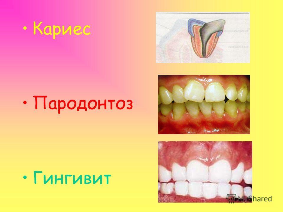 Последствия жевательной резинки: По мнению стоматологов, большинство жевательных резинок содержат такие компоненты, которые вместо защиты зубов и десен сами являются причиной таких заболеваний зубов, десен и полости рта, как кариес, пародонтоз и гинг