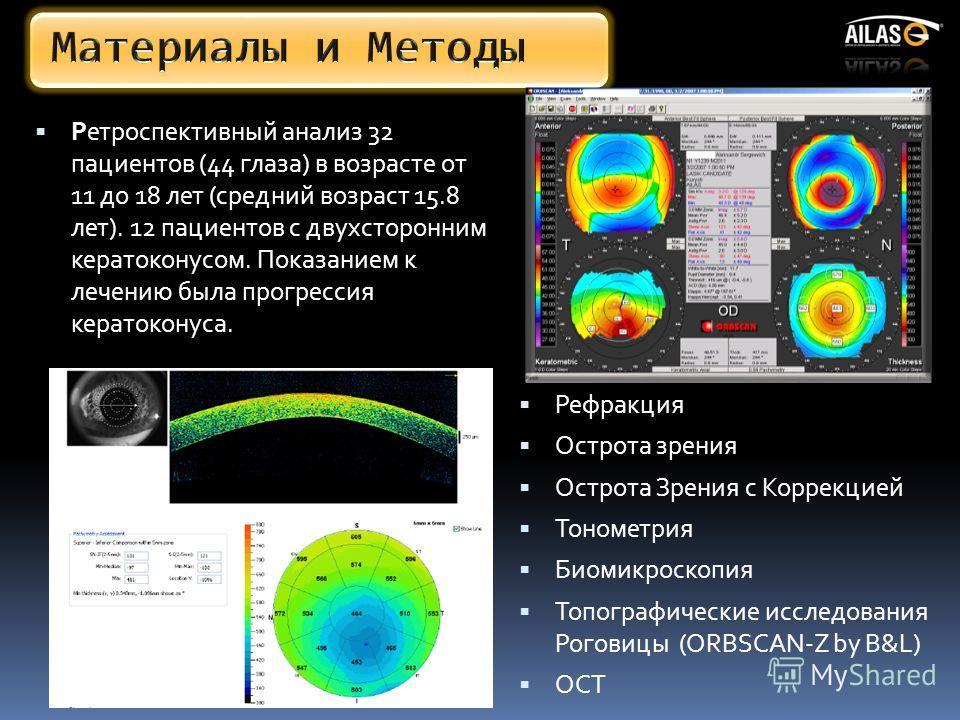 Ретроспективный анализ 32 пациентов (44 глаза) в возрасте от 11 до 18 лет (средний возраст 15.8 лет). 12 пациентов с двухсторонним кератоконусом. Показанием к лечению была прогрессия кератоконуса. Рефракция Острота зрения Острота Зрения с Коррекцией
