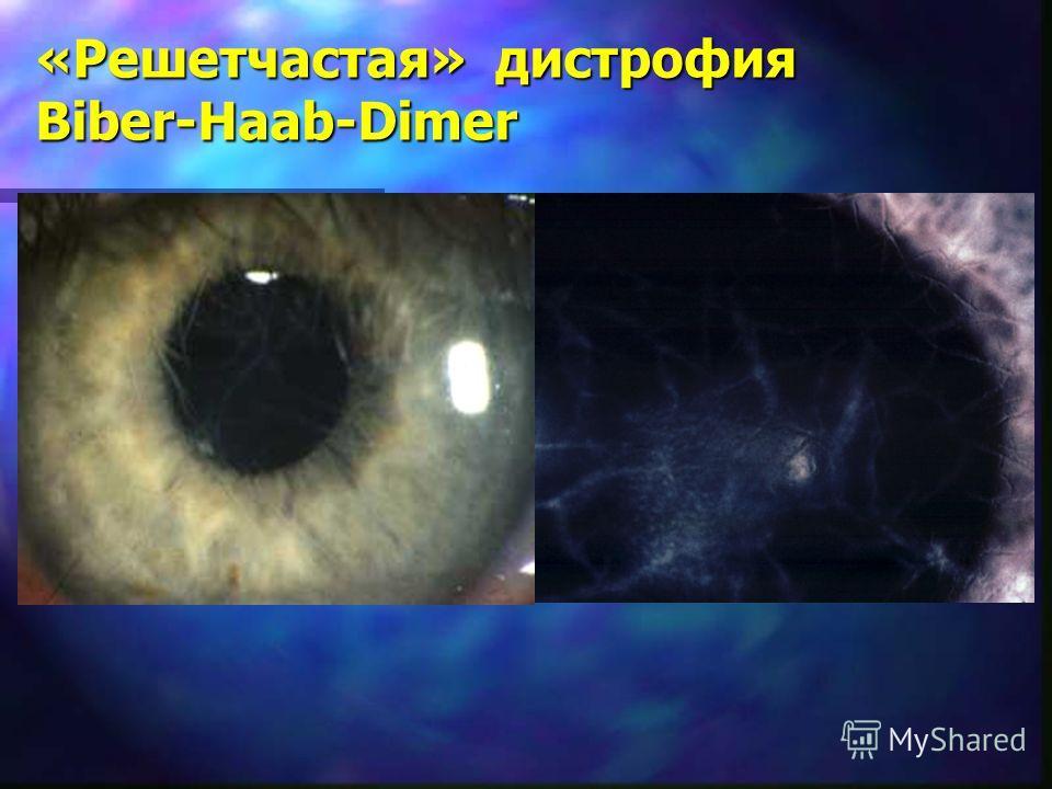 «Решетчастая» дистрофия Biber-Haab-Dimer