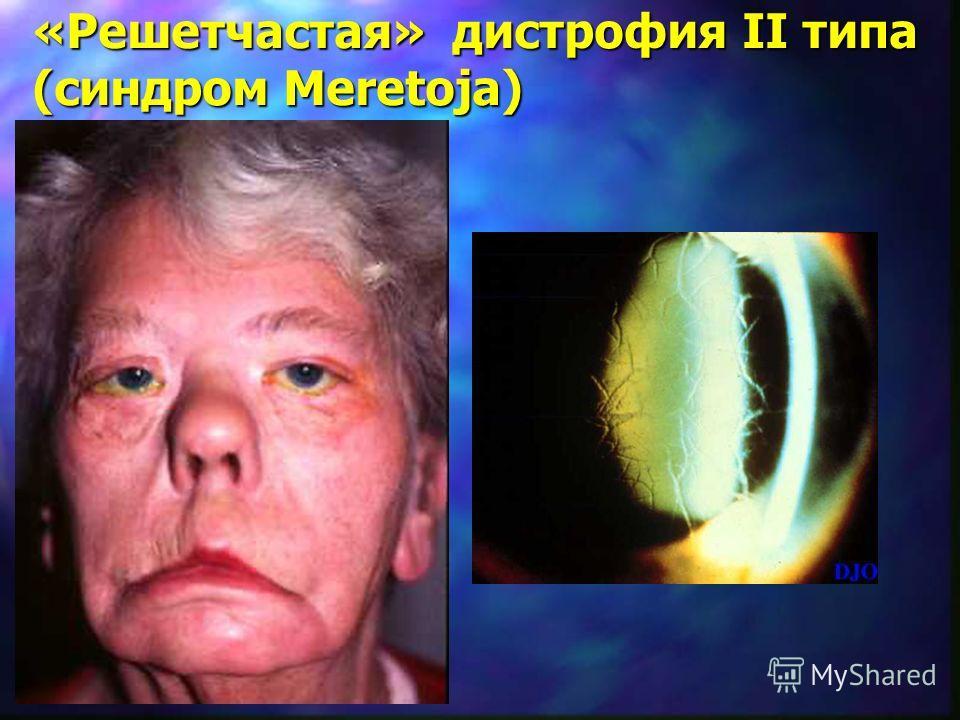 «Решетчастая» дистрофия II типа (синдром Meretoja)
