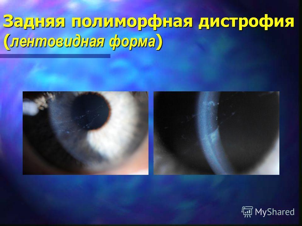 Задняя полиморфная дистрофия ( лентовидная форма )