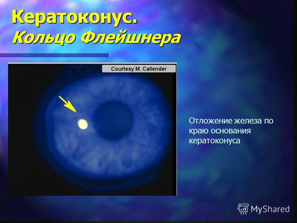 Кератоконус. Кольцо Флейшнера Отложение железа по краю основания кератоконуса