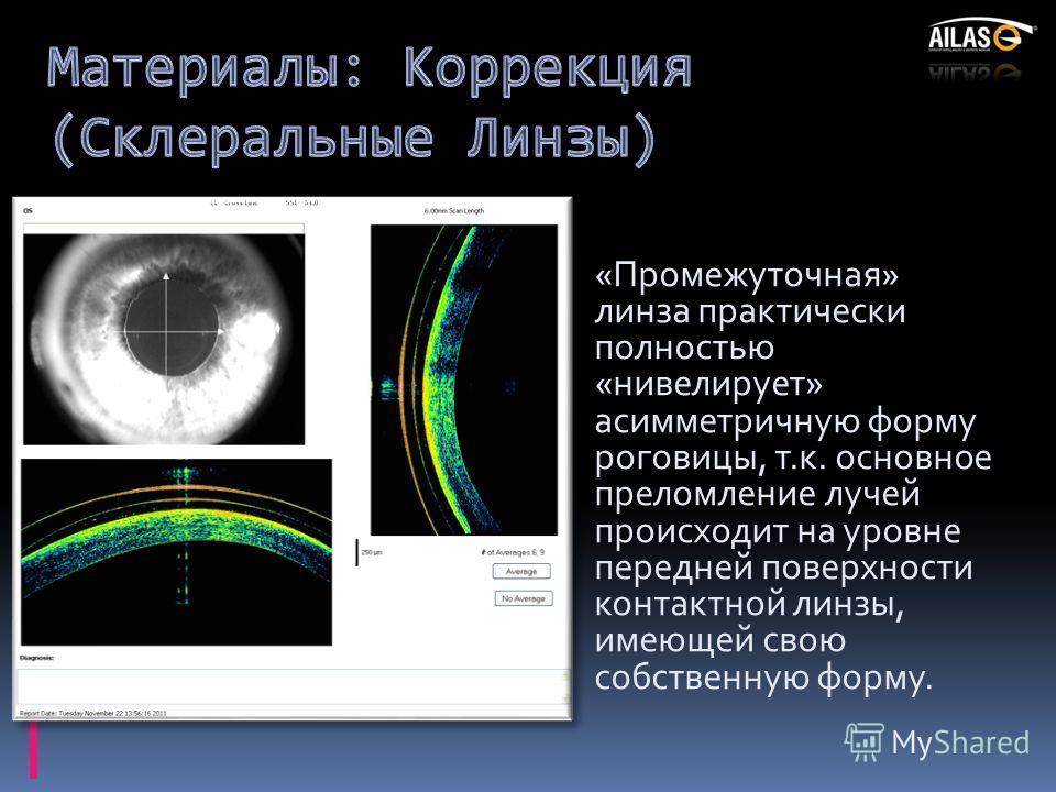 «Промежуточная» линза практически полностью «нивелирует» асимметричную форму роговицы, т.к. основное преломление лучей происходит на уровне передней поверхности контактной линзы, имеющей свою собственную форму.
