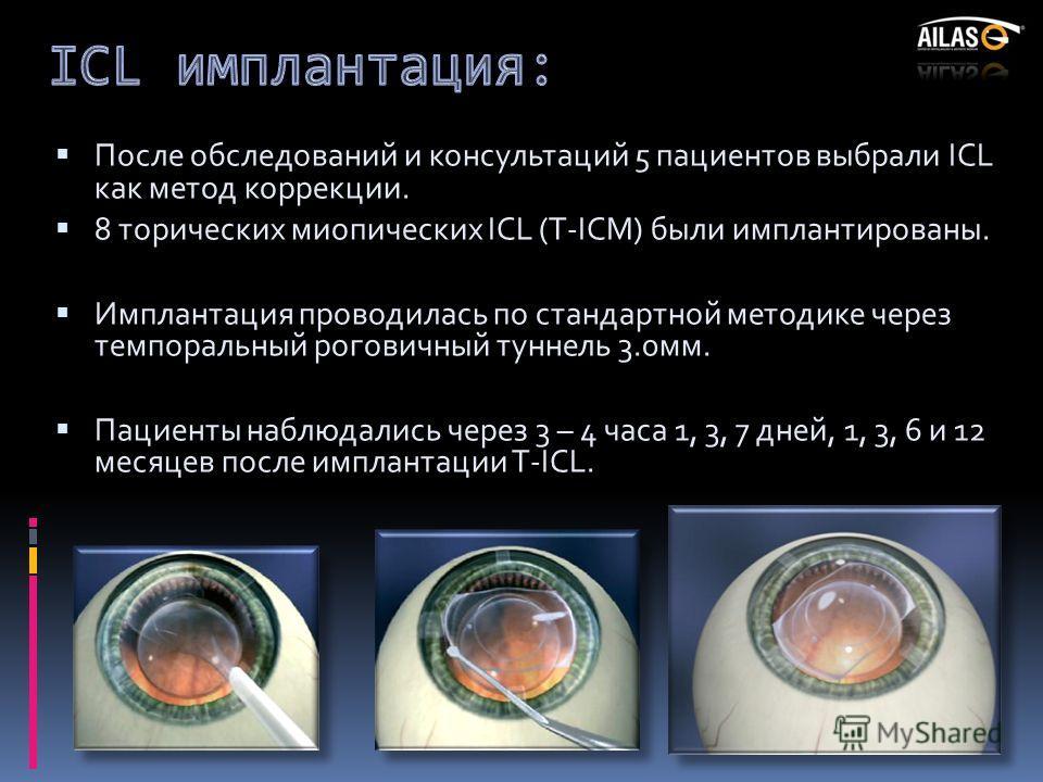 После обследований и консультаций 5 пациентов выбрали ICL как метод коррекции. 8 торических миопических ICL (T-ICM) были имплантированы. Имплантация проводилась по стандартной методике через темпоральный роговичный туннель 3.0мм. Пациенты наблюдались