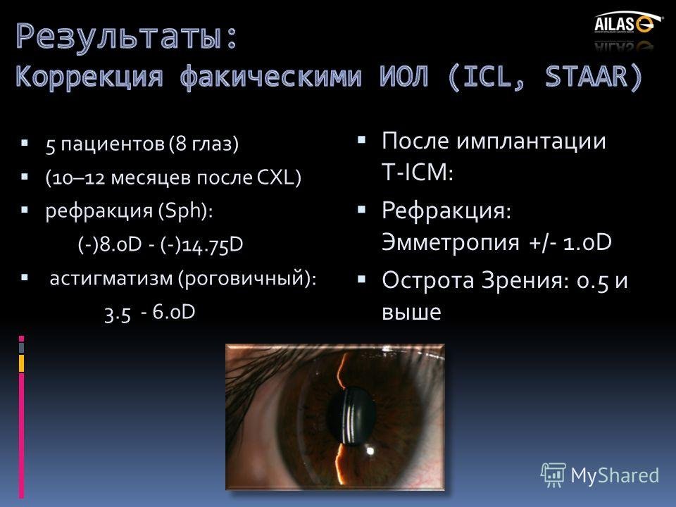 5 пациентов (8 глаз) (10–12 месяцев после CXL) рефракция (Sph): (-)8.0D - (-)14.75D астигматизм (роговичный): 3.5 - 6.0D После имплантации T-ICM: Рефракция: Эмметропия +/- 1.0D Острота Зрения: 0.5 и выше