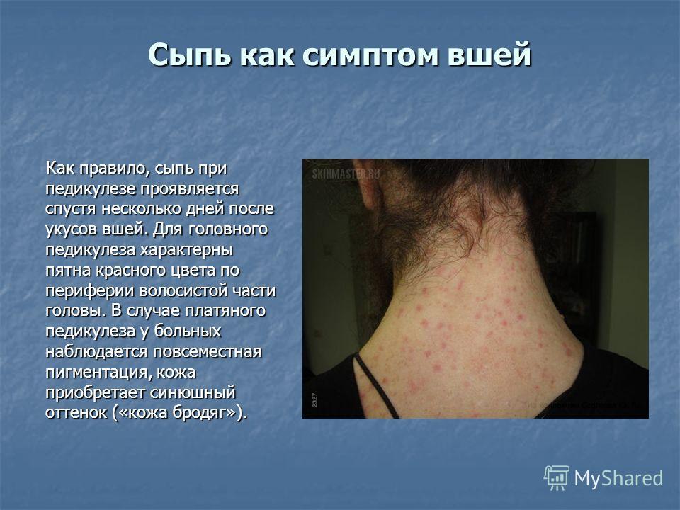 Сыпь как симптом вшей Как правило, сыпь при педикулезе проявляется спустя несколько дней после укусов вшей. Для головного педикулеза характерны пятна красного цвета по периферии волосистой части головы. В случае платяного педикулеза у больных наблюда