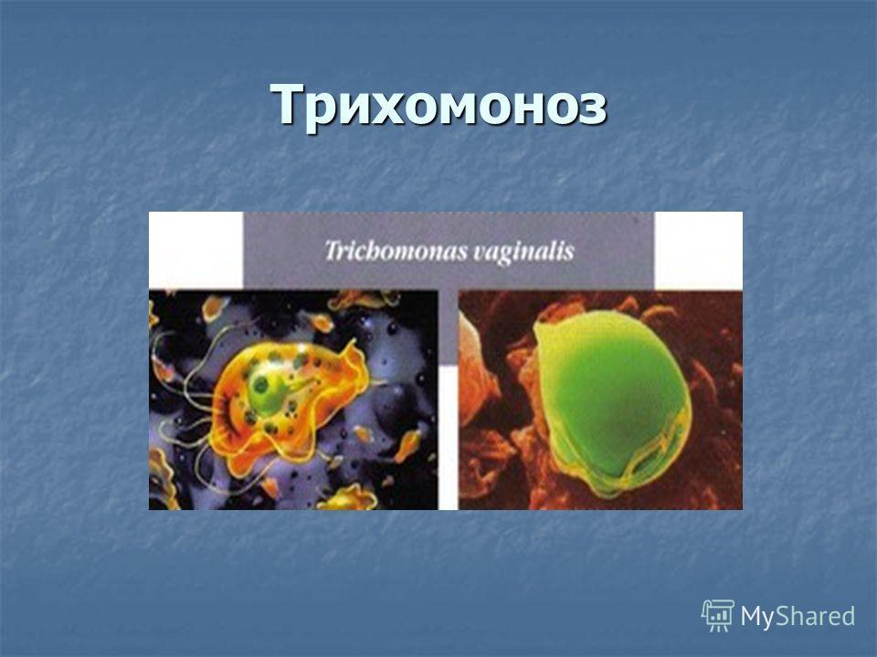 Трихомоноз