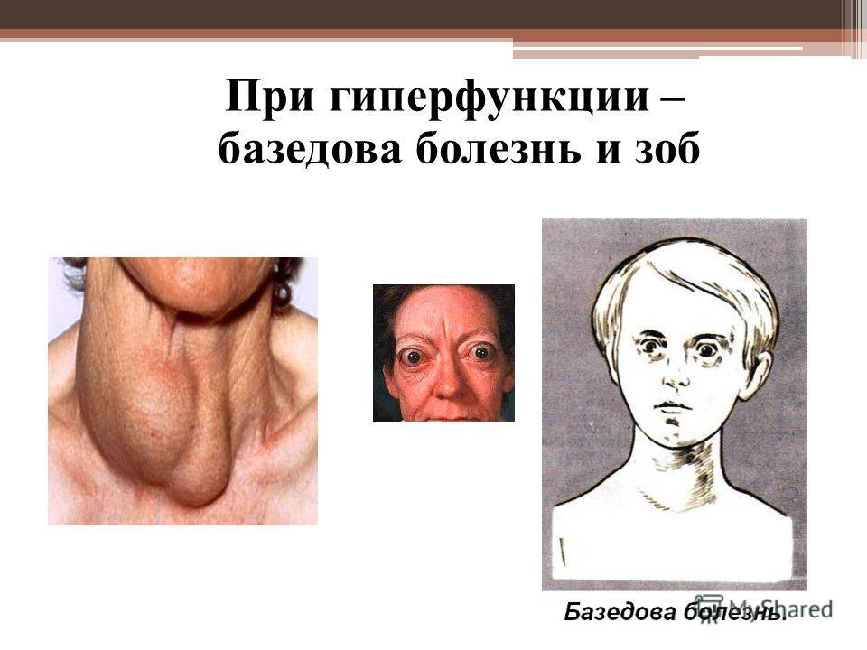 При гиперфункции – базедова болезнь и зоб