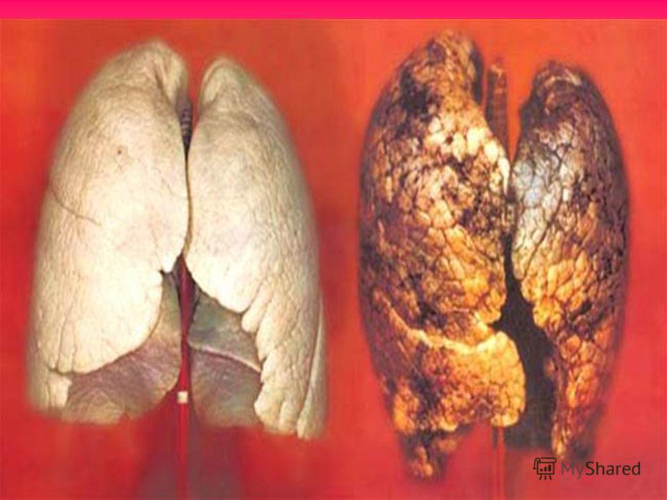 Действие курения на органы дыхания При курении табачный дым проникает в ротовую полость, дыхательные пути, вызывают раздражение слизистых оболочек и оседает на пленке лёгочных пузырьков
