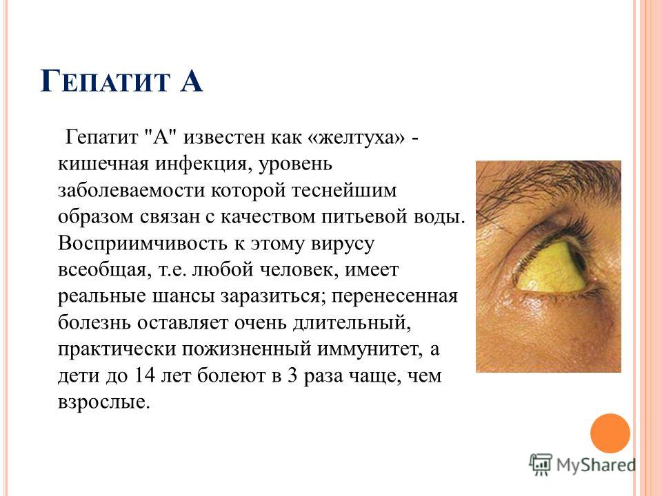 Г ЕПАТИТ А Гепатит