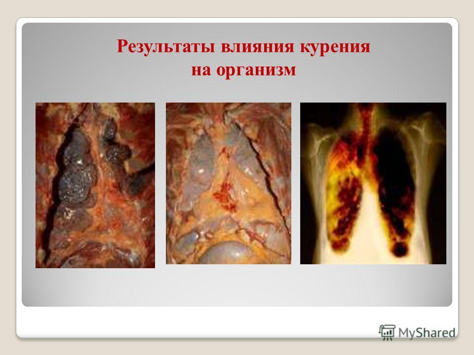Результаты влияния курения на организм