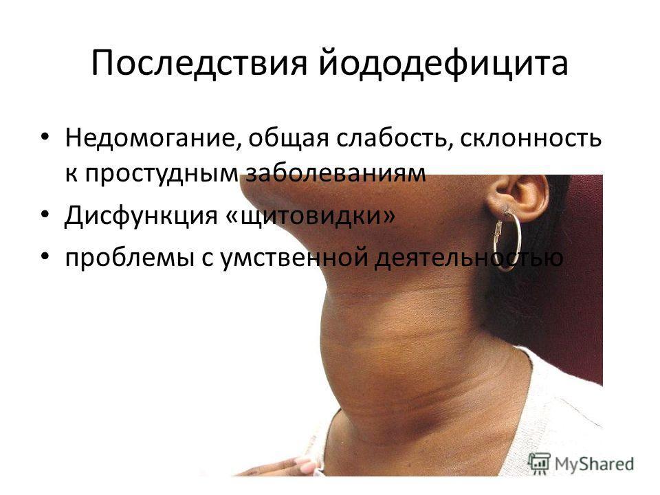Последствия йододефицита Недомогание, общая слабость, склонность к простудным заболеваниям Дисфункция «щитовидки» проблемы с умственной деятельностью