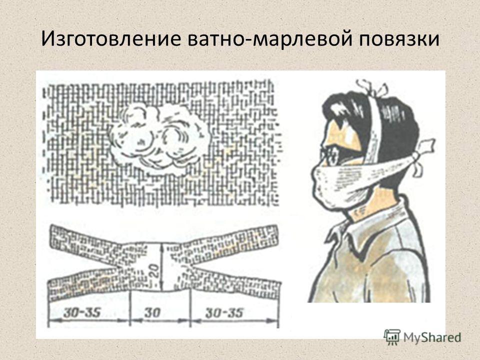 Изготовление ватно-марлевой повязки