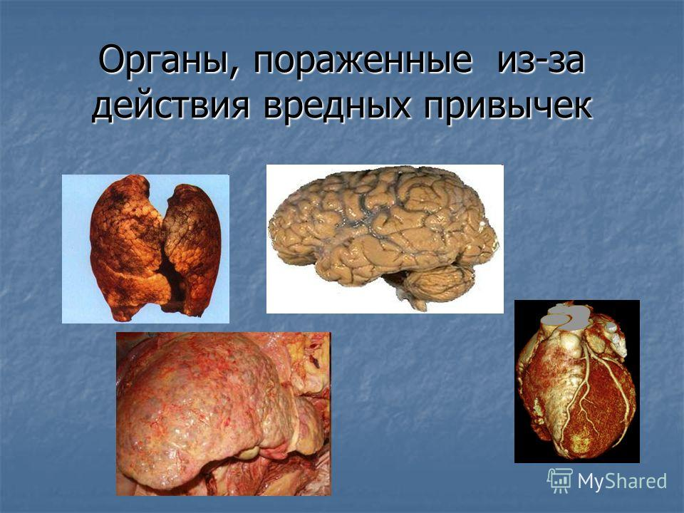 Органы, пораженные из-за действия вредных привычек
