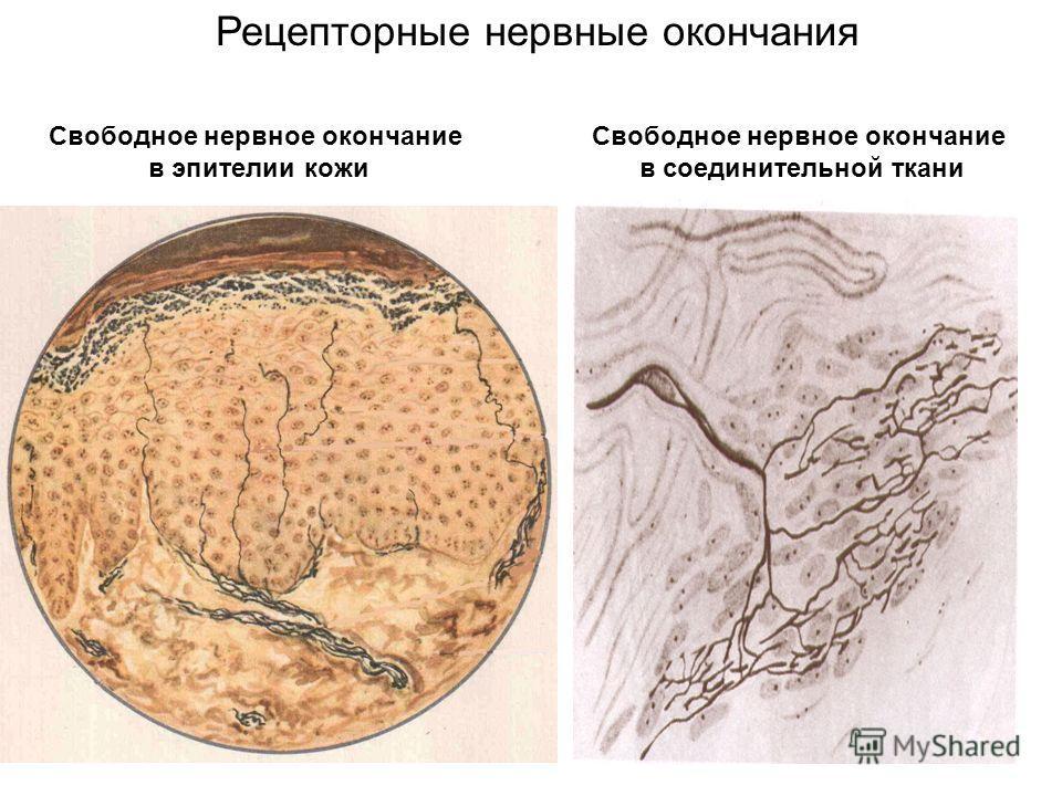 Свободное нервное окончание в эпителии кожи Свободное нервное окончание в соединительной ткани Рецепторные нервные окончания