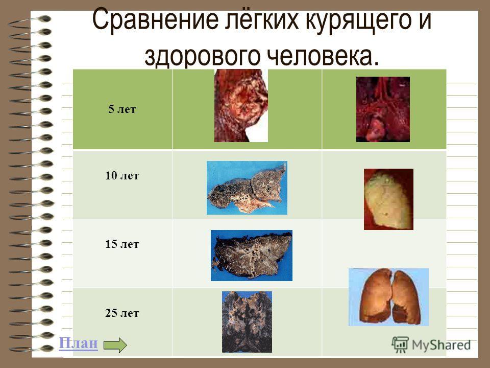 Сравнение лёгких курящего и здорового человека. 5 лет 10 лет 15 лет 25 лет План