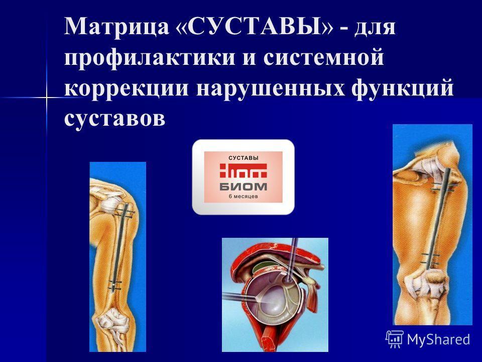 Матрица «СУСТАВЫ» - для профилактики и системной коррекции нарушенных функций суставов