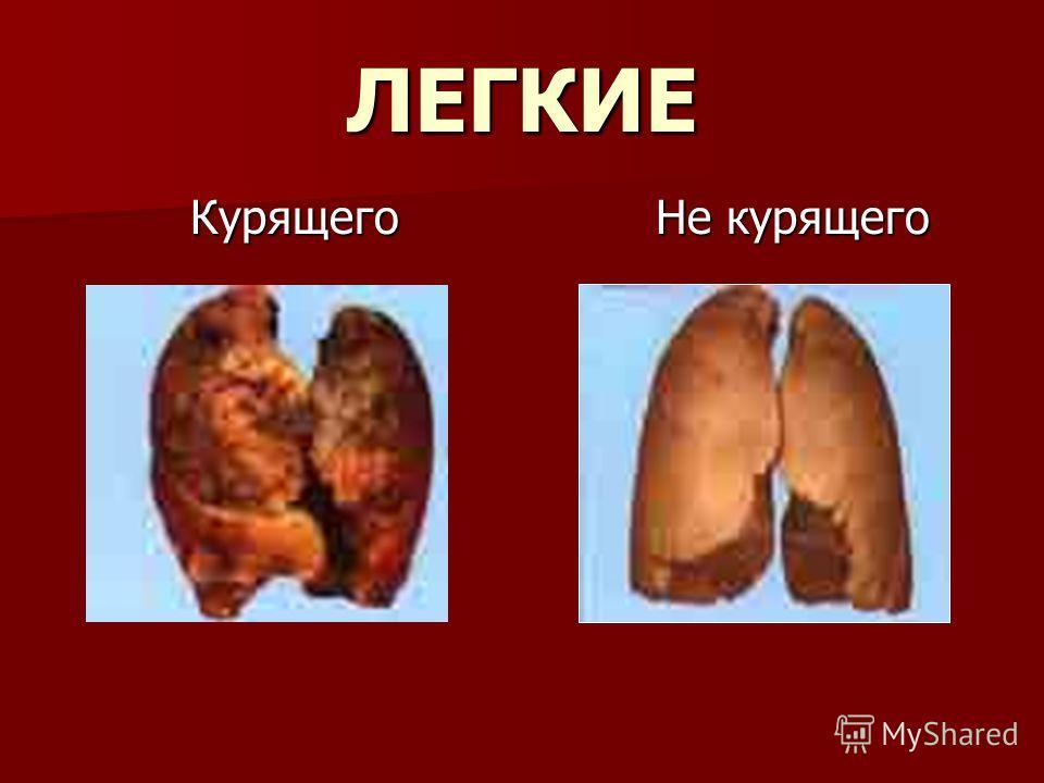 ЛЕГКИЕ Курящего Курящего Не курящего Не курящего