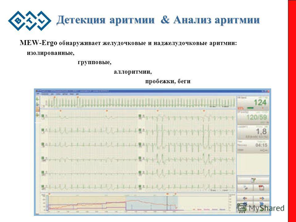 Детекция аритмии & Анализ аритмии MEW-Ergo обнаруживает желудочковые и наджелудочковые аритмии: изолированные, групповые, аллоритмии, пробежки, беги