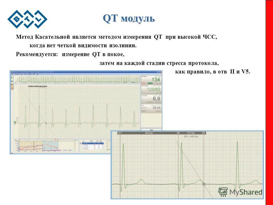 QT модуль Метод Касательной является методом измерения QT при высокой ЧCC, когда нет четкой видимости изолинии. Рекомендуется: измерение QT в покое, затем на каждой стадии стресса протокола, как правило, в отв II и V5.