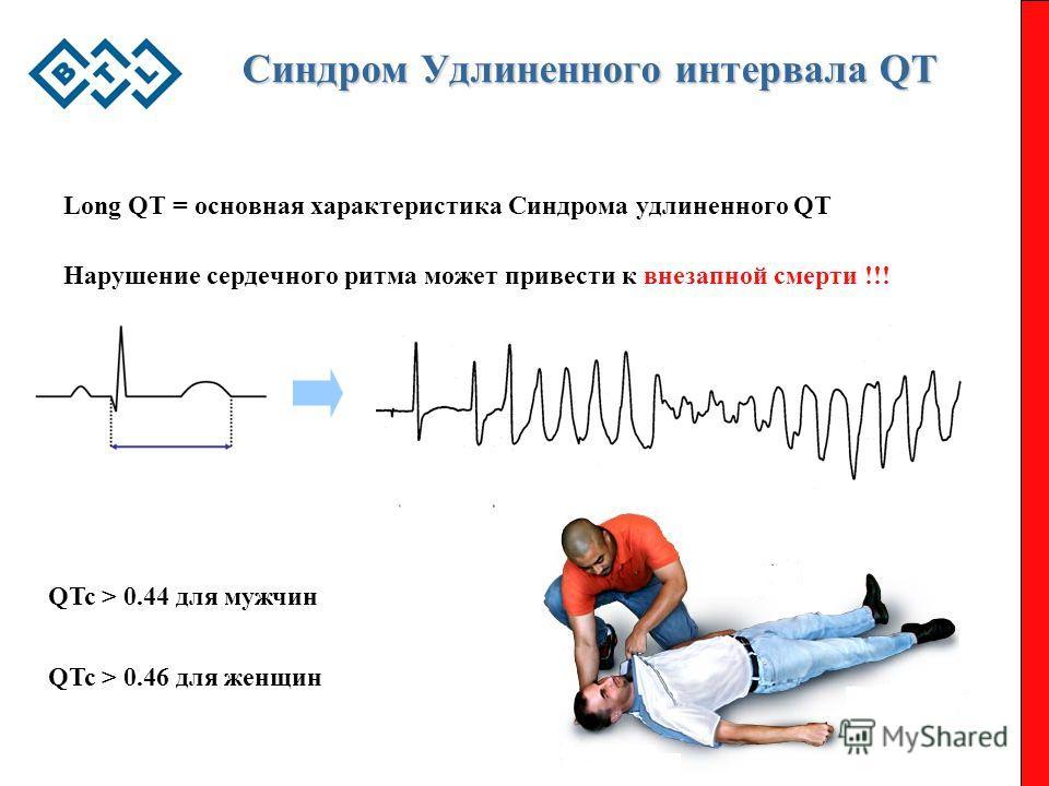 Синдром Удлиненного интервала QT Long QT = основная характеристика Cиндрома удлиненного QT Нарушение сердечного ритма может привести к внезапной смерти !!! QTc > 0.44 для мужчин QTc > 0.46 для женщин