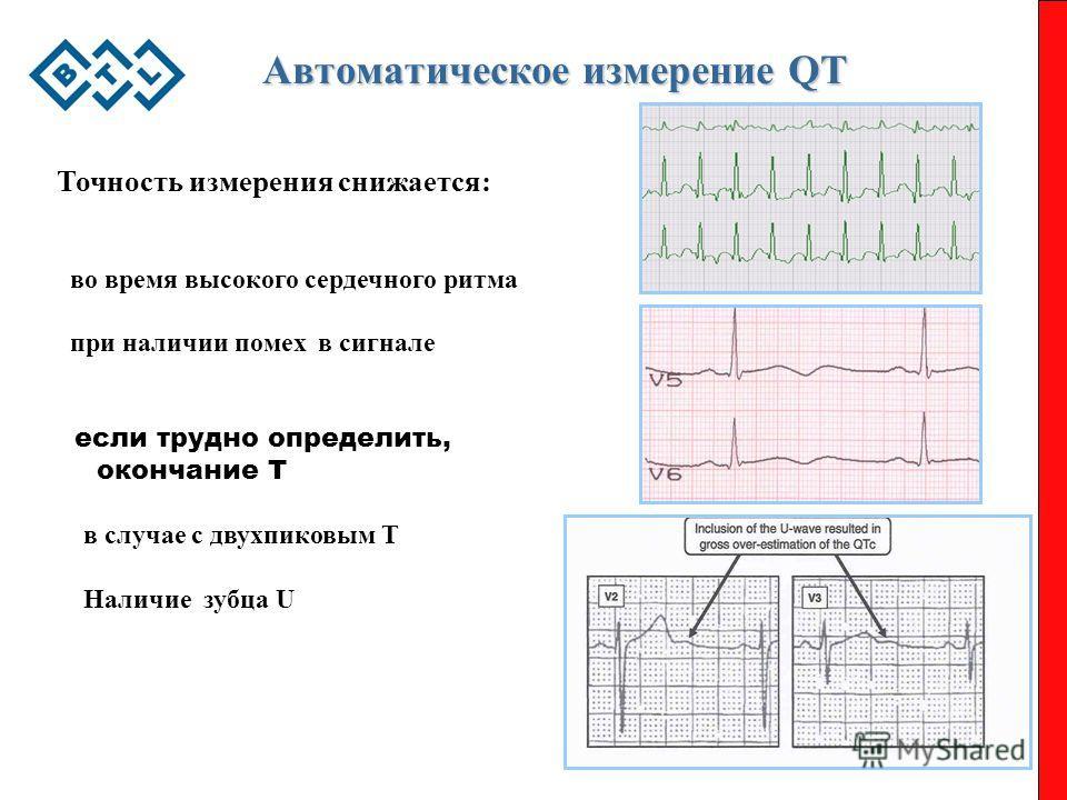 Автоматическое измерение QT Автоматическое измерение QT Точность измерения снижается: во время высокого сердечного ритма при наличии помех в сигнале если трудно определить, окончание T в случае с двухпиковым T Наличие зубца U