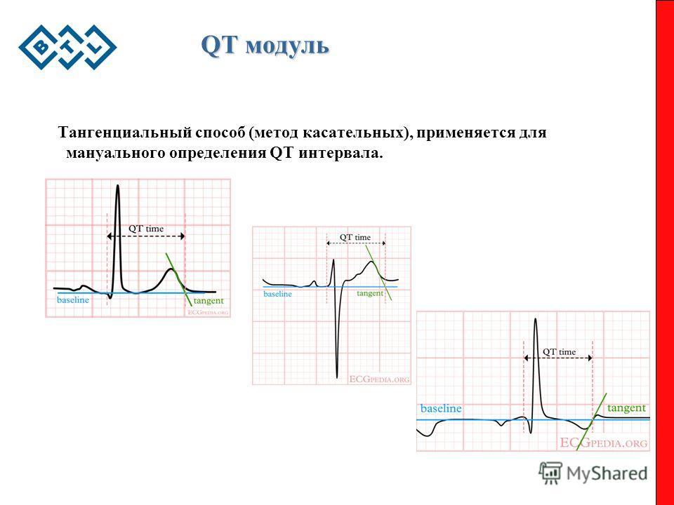 QT модуль Тангенциальный способ (метод касательных), применяется для мануального определения QT интервала.