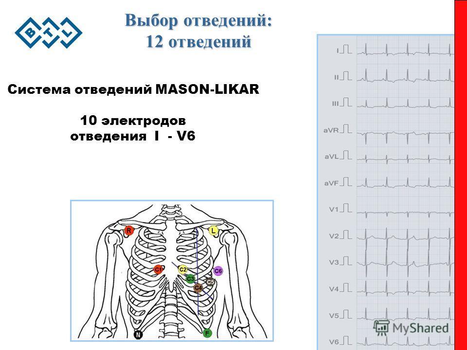 Выбор отведений: 12 отведений Система отведений MASON-LIKAR 10 электродов отведения I - V6