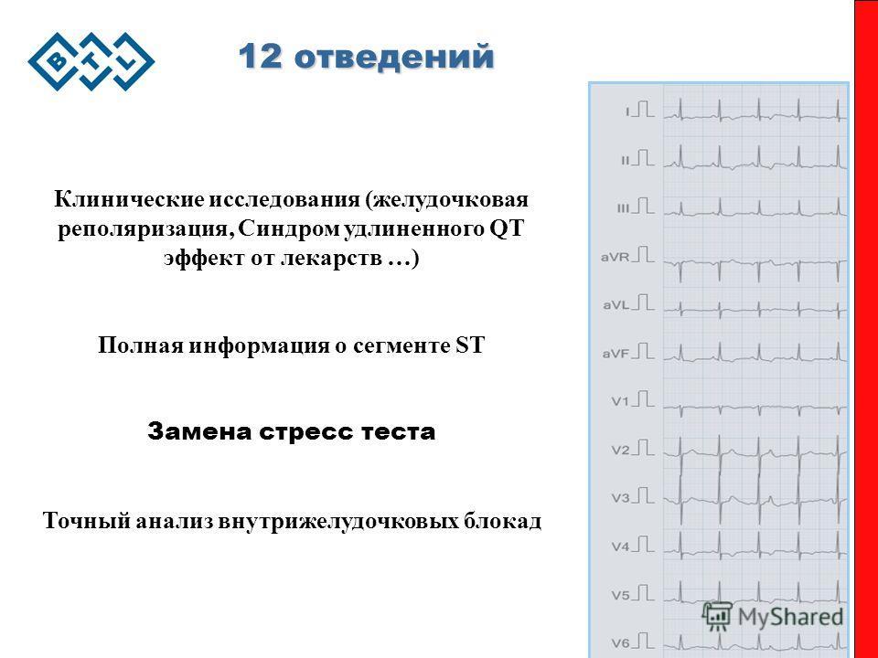 12 отведений Клинические исследования (желудочковая реполяризация, Синдром удлиненного QT эффект от лекарств …) Полная информация о сегменте ST Замена стресс теста Точный анализ внутрижелудочковых блокад