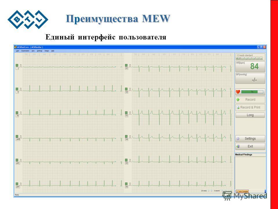 Преимущества MEW Единый интерфейс пользователя