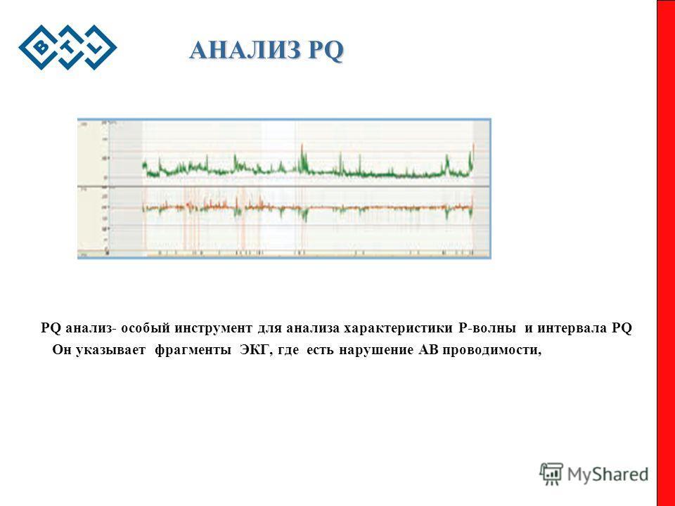 АНАЛИЗ PQ PQ анализ- особый инструмент для анализа характеристики Р-волны и интервала PQ Он указывает фрагменты ЭКГ, где есть нарушение АВ проводимости,