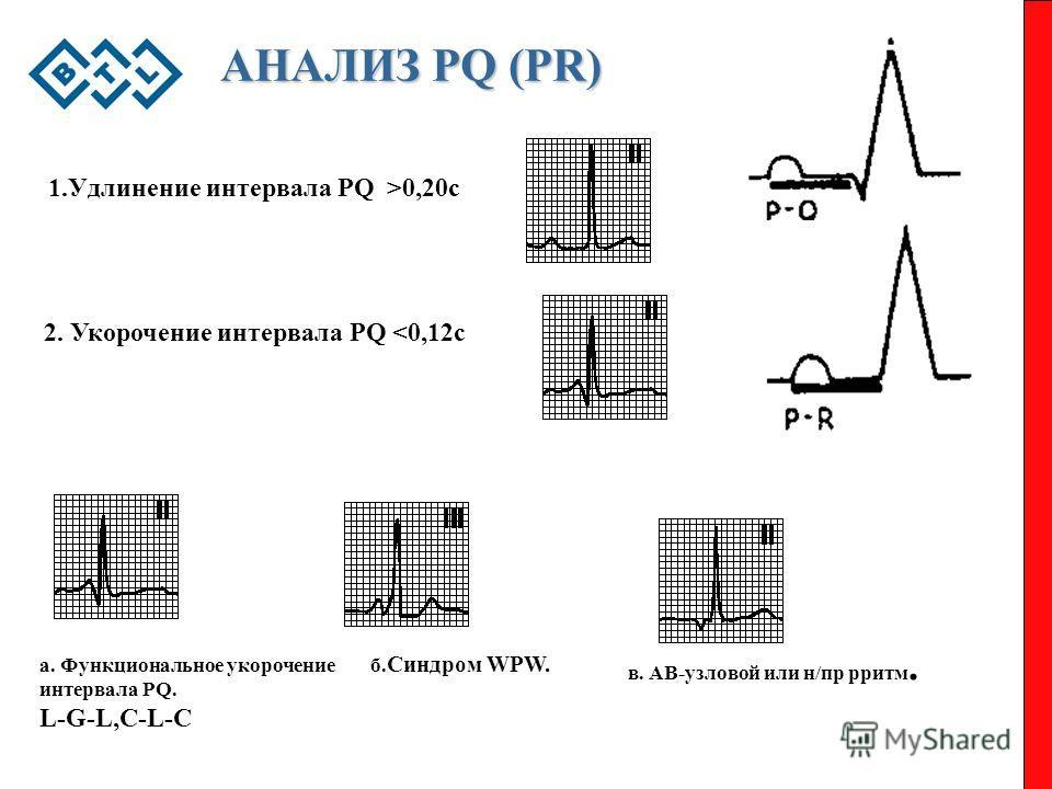 АНАЛИЗ PQ (PR) 1.Удлинение интервала PQ >0,20c 2. Укорочение интервала PQ