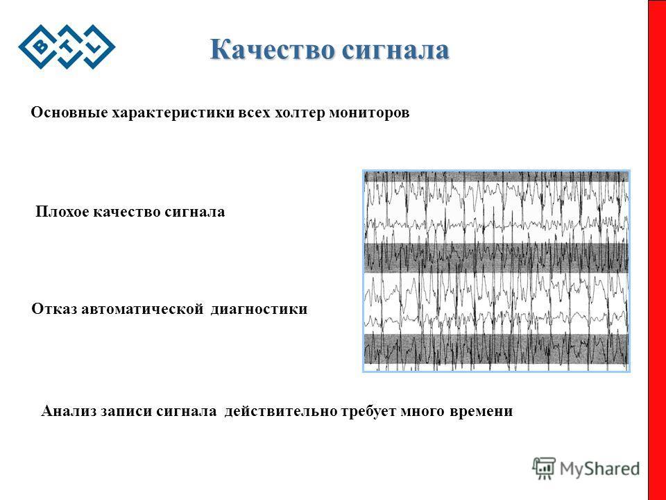 Качество сигнала Основные характеристики всех холтер мониторов Плохое качество сигнала Отказ автоматической диагностики Анализ записи сигнала действительно требует много времени