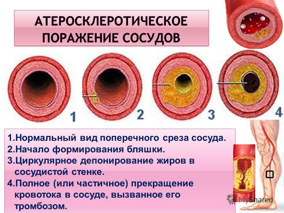 1.Нормальный вид поперечного среза сосуда. 2.Начало формирования бляшки. 3.Циркулярное депонирование жиров в сосудистой стенке. 4.Полное (или частичное) прекращение кровотока в сосуде, вызванное его тромбозом. 1.Нормальный вид поперечного среза сосуд