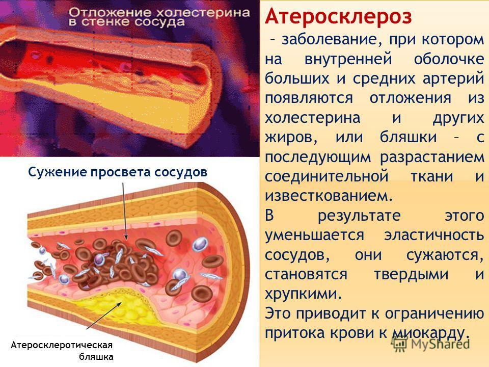 Атеросклероз – заболевание, при котором на внутренней оболочке больших и средних артерий появляются отложения из холестерина и других жиров, или бляшки – с последующим разрастанием соединительной ткани и известкованием. В результате этого уменьшается