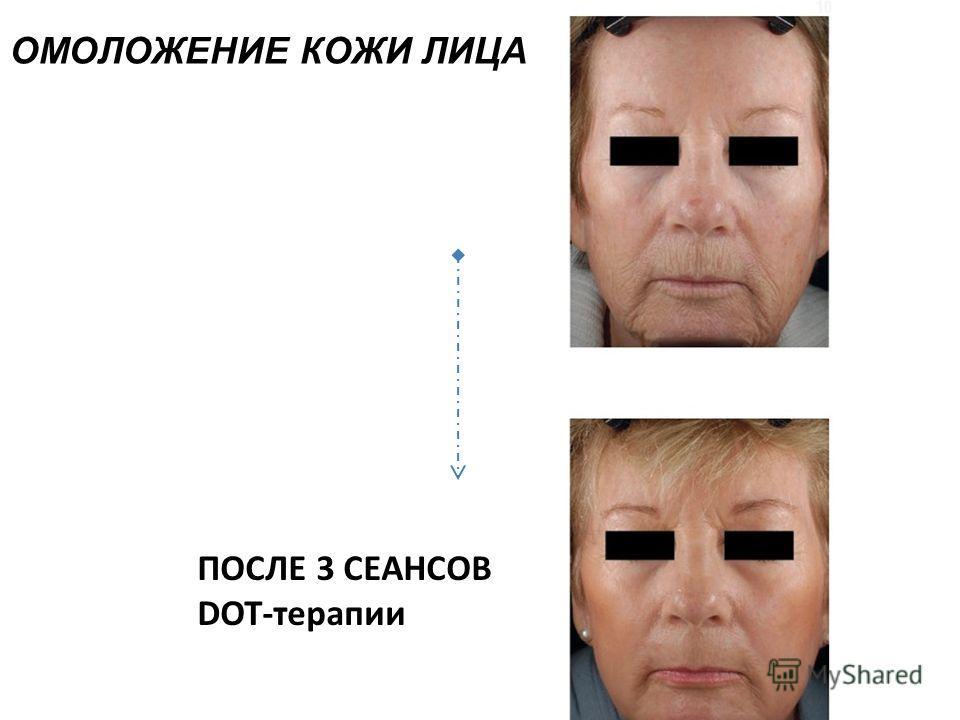 ПОСЛЕ 3 СЕАНСОВ DOT-терапии ОМОЛОЖЕНИЕ КОЖИ ЛИЦА