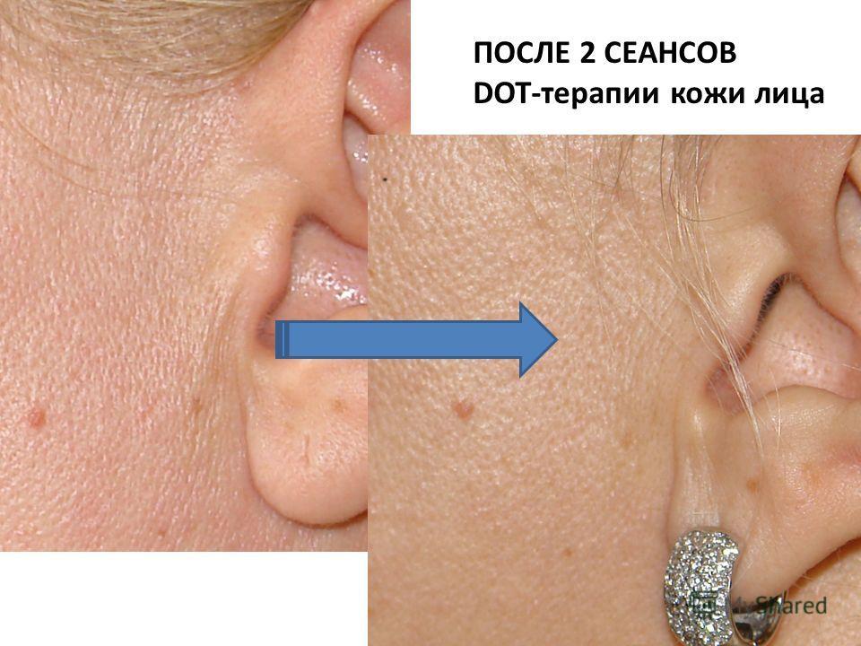 ПОСЛЕ 2 СЕАНСОВ DOT-терапии кожи лица