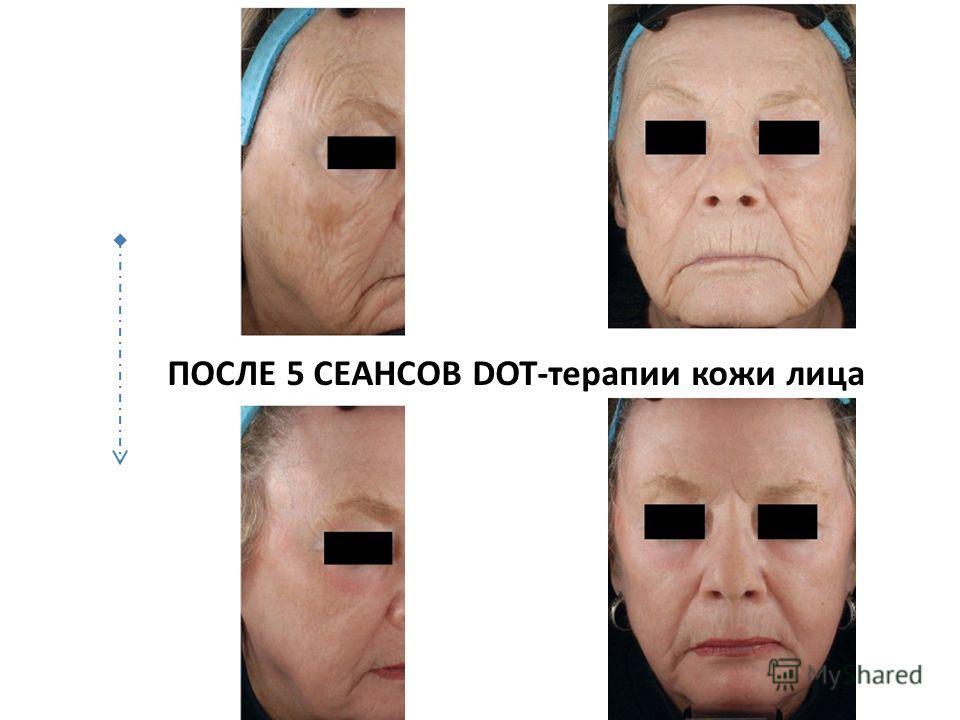 ПОСЛЕ 5 СЕАНСОВ DOT-терапии кожи лица