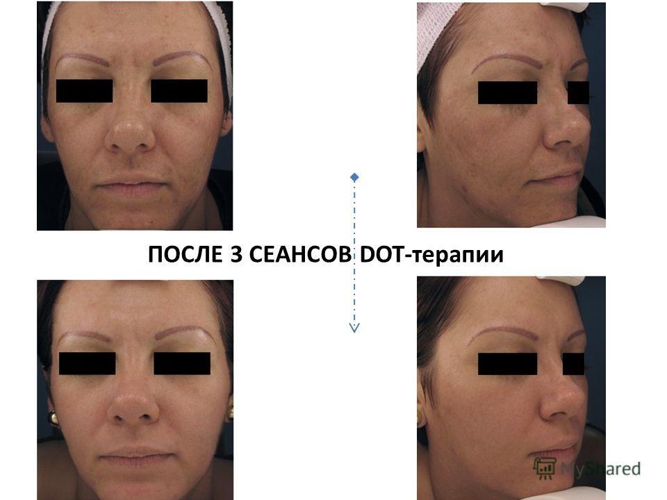 ПОСЛЕ 3 СЕАНСОВ DOT-терапии