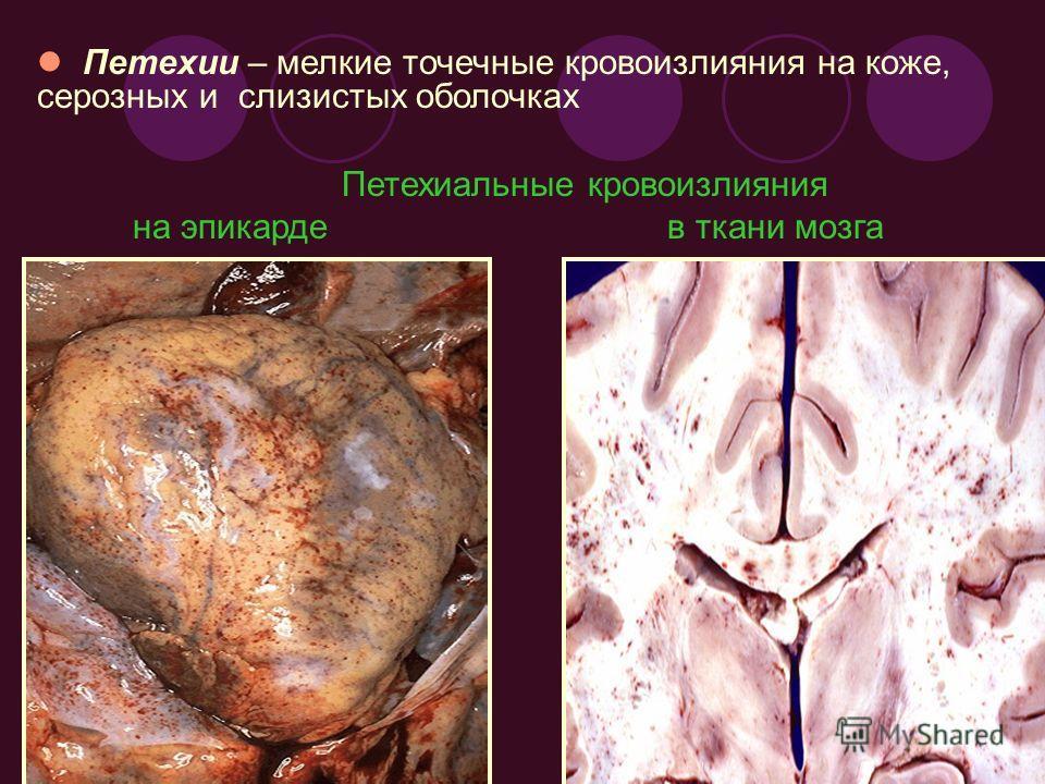 Петехии – мелкие точечные кровоизлияния на коже, серозных и слизистых оболочках Петехиальные кровоизлияния на эпикарде в ткани мозга