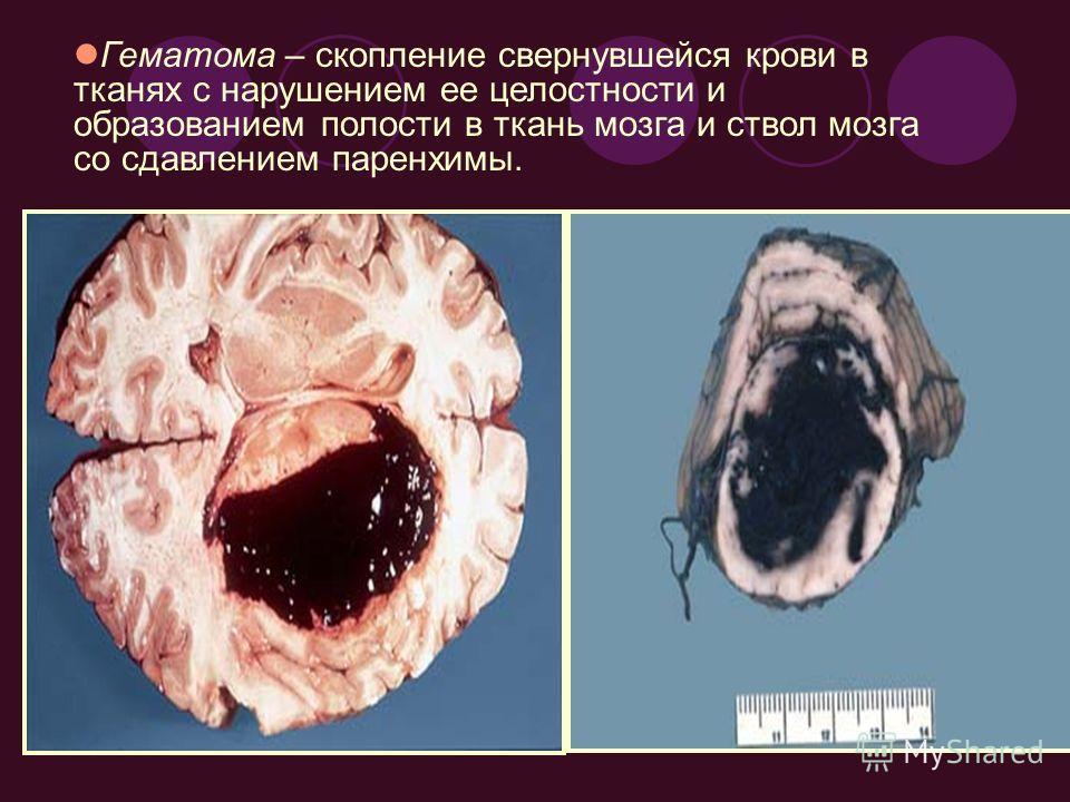 Гематома – скопление свернувшейся крови в тканях с нарушением ее целостности и образованием полости в ткань мозга и ствол мозга со сдавлением паренхимы.