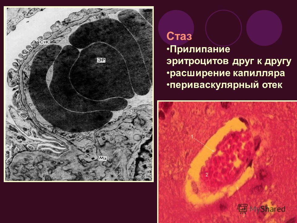 Стаз Прилипание эритроцитов друг к другу расширение капилляра периваскулярный отек