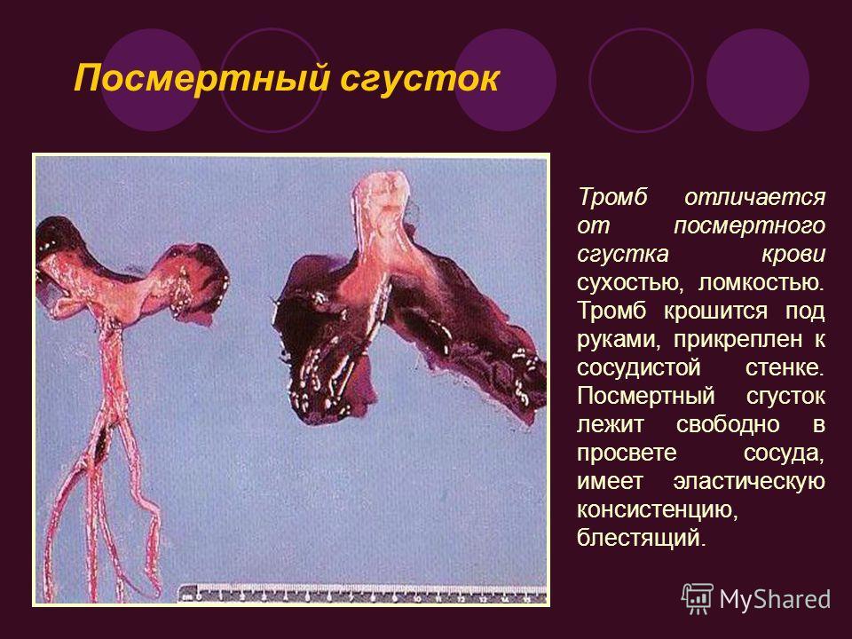 Тромб отличается от посмертного сгустка крови сухостью, ломкостью. Тромб крошится под руками, прикреплен к сосудистой стенке. Посмертный сгусток лежит свободно в просвете сосуда, имеет эластическую консистенцию, блестящий. Посмертный сгусток